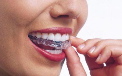 FOCUS #1 Juillet 2018 : L'orthodontie chez l'adulte, pourquoi et comment ?