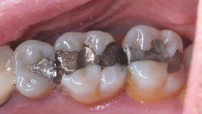 amalgame fragilisant une molaire