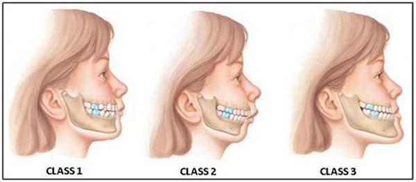 schema mal occlusion en orthodontie