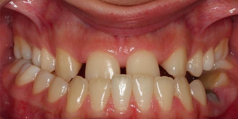 Orthodontie adulte : exemple articulé croisé