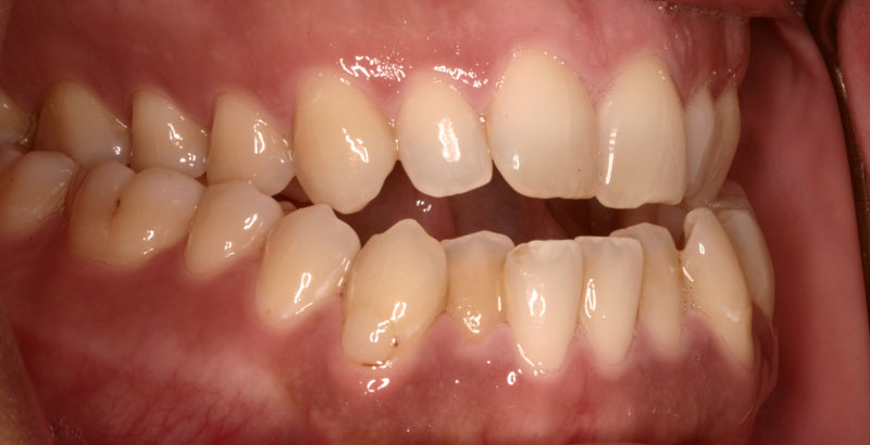 orthodontie adulte : exemple de béance