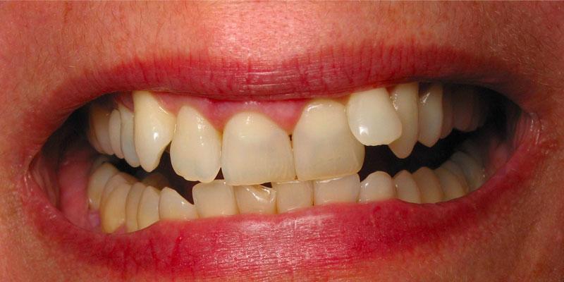 orthodontie adulte : exemple encombrement
