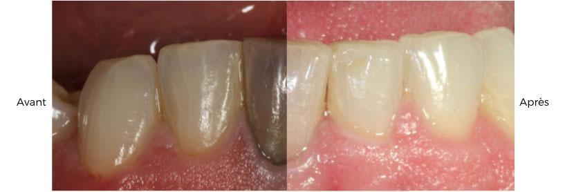blanchissement des dents avant-après