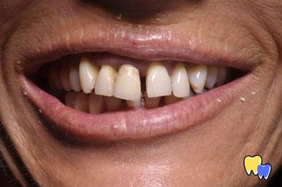 Cas pratique esthétique dentaire -avant