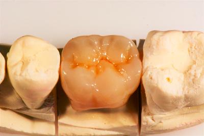 pose d'une couronne dentaire