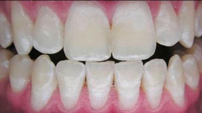 Résultat blanchiment dents après 3 ans
