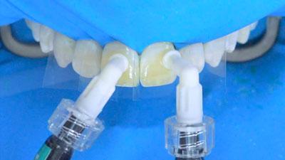 technique blanchiment par érosion filtration