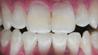 dents jaunes avant blanchiment