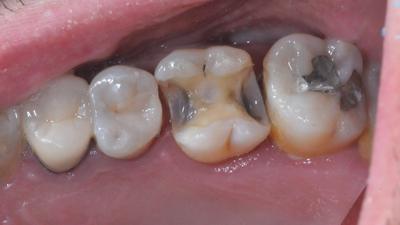 Dépose d'un amalgame (dent)
