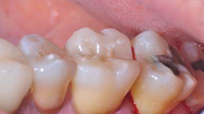 intégration finale d'une dent restaurée