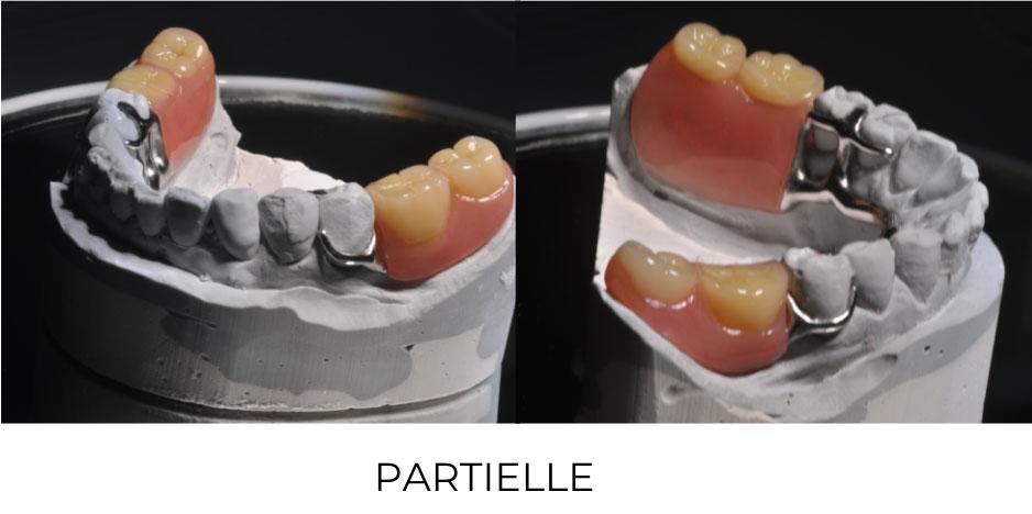 Prothèse dentaire amovible partielle