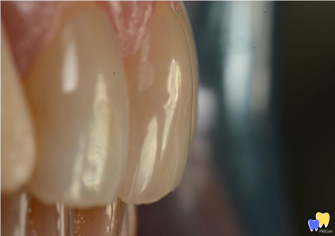 Texture et reliefs des dents